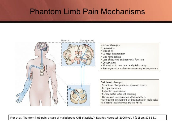 phantom pain and limbs Continued other ways to ease phantom limb pain if your pain is a problem even when you use medicine and non-drug therapies, your doctor may suggest other medical procedures.