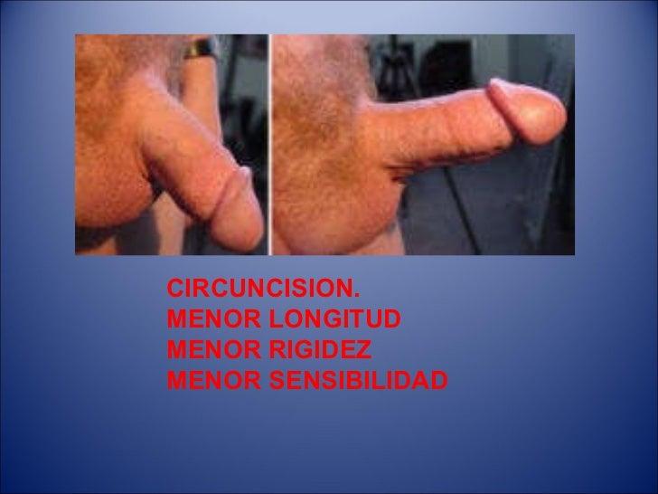 La operación de la reducción del miembro viril
