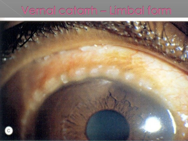  Silvery white, foamy or cheesy patch  Keratinised epithelium – temporal limbus  Seen in vitamin A deficiency