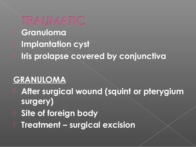 an essay on auto transplantation Facts about organ donation and organ transplantation essay 1977 words | 8   imagine that a loved one has just been severely injured in a car accident 2.