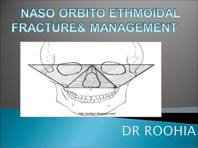  NOE - naso-orbital ethmoid  NEC - naso-ethmoid complex  Naso ethmoid orbital  Naso-orbital ethmoidal