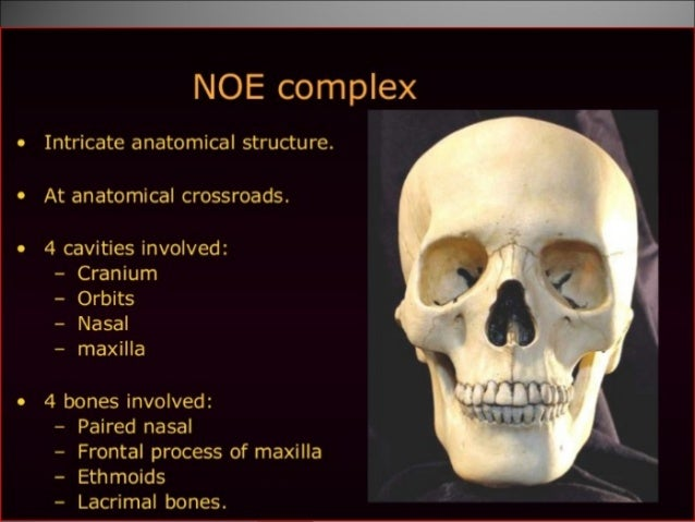 Naso Orbito Ethmoidal Fracture And Management