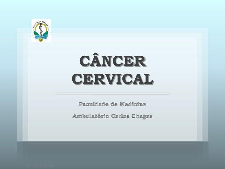 CÂNCER                      CERVICAL     Chirlei A Ferreira