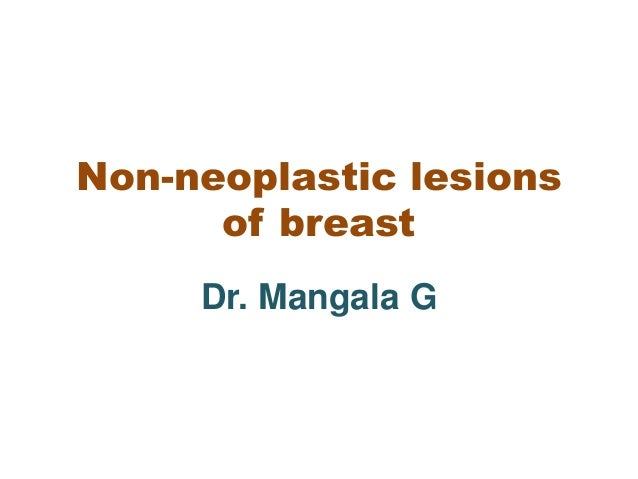 Neoplastic breast cancer