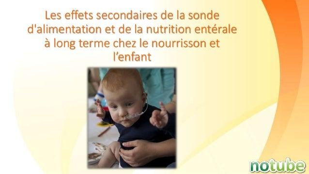 Les effets secondaires de la sonde d'alimentation et de la nutrition entérale à long terme chez le nourrisson et l'enfant