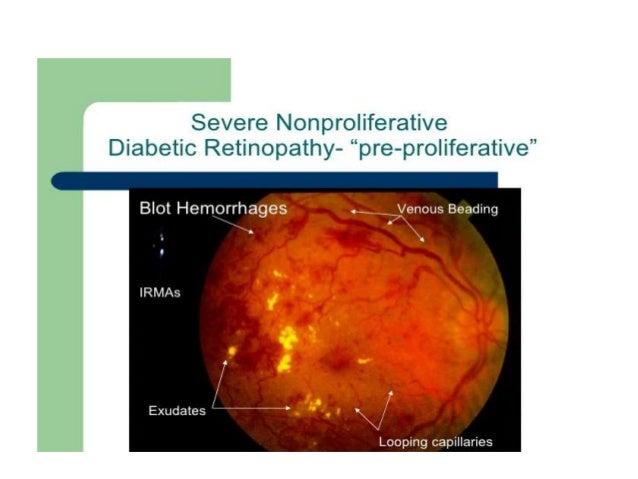 proliferative diabetic retinopathy