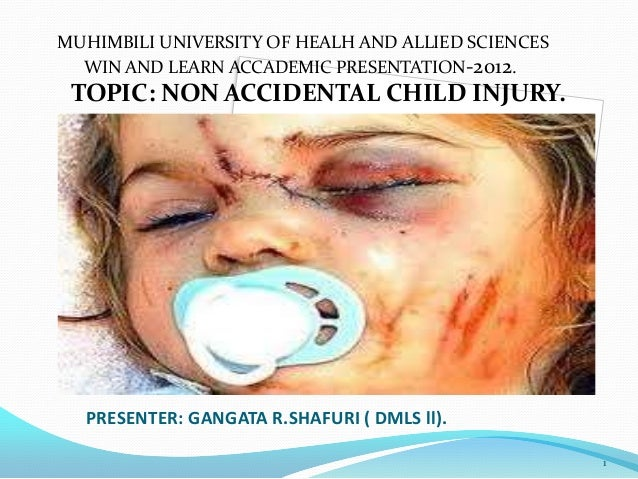 MUHIMBILI UNIVERSITY OF HEALH AND ALLIED SCIENCES WIN AND LEARN ACCADEMIC PRESENTATION-2012.  TOPIC: NON ACCIDENTAL CHILD ...