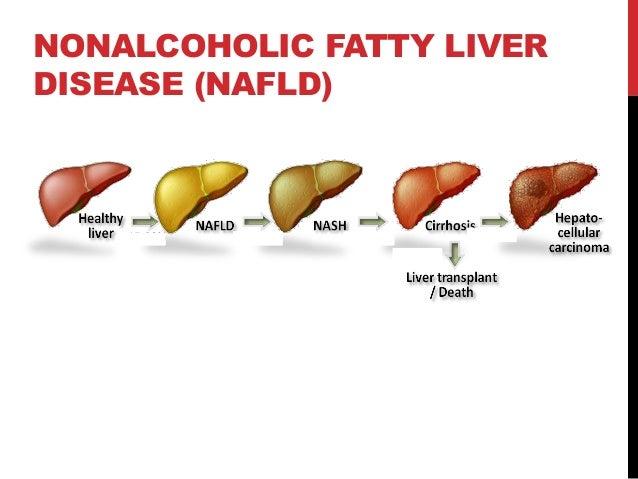 fatty liver disease Nonalcoholic fatty liver disease is an umbrella term for a range of liver conditions affecting people who drink little to no alcohol as the name implies, the main characteristic of nonalcoholic fatty liver disease is too much fat stored in liver cells nonalcoholic steatohepatitis, a potentially.