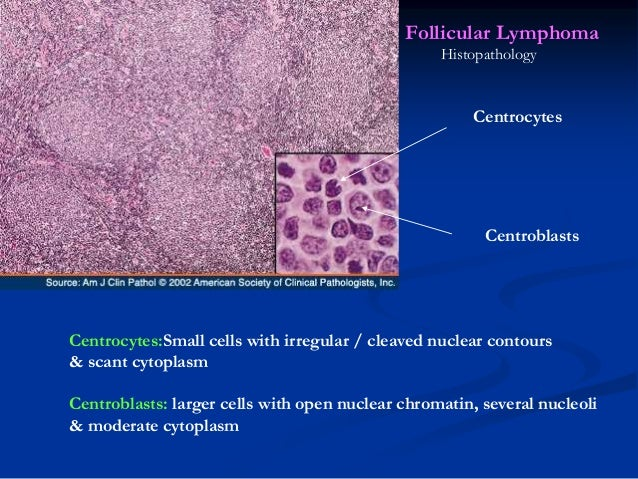 •Bone marrow involvement occurs in 85 % of cases •Characteristically takes the form of paratrabecular aggregates bcl2 posi...