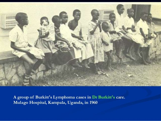 Clinical features Both endemic & sporadic are found in children and young adults. Endemic Burkitt lymphoma : often present...