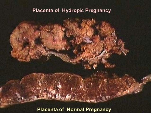 non immune hydrops fetalis pdf