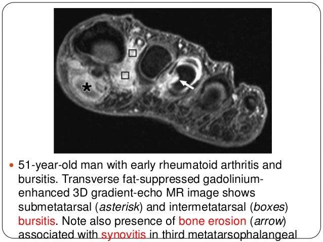 Noninfective inflammatory arthropathy- RHEUMATOID ARTHRITIS