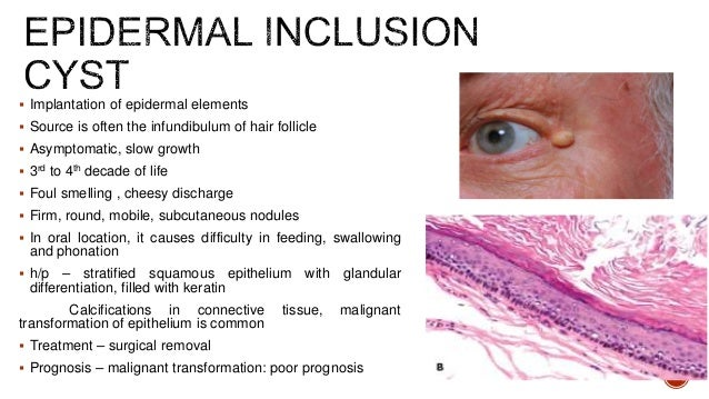 Non odontogenic cyst