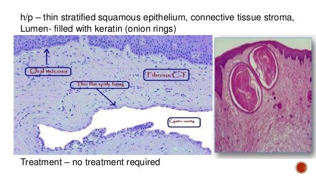  Implantation of epidermal elements  Source is often the infundibulum of hair follicle  Asymptomatic, slow growth  3rd...
