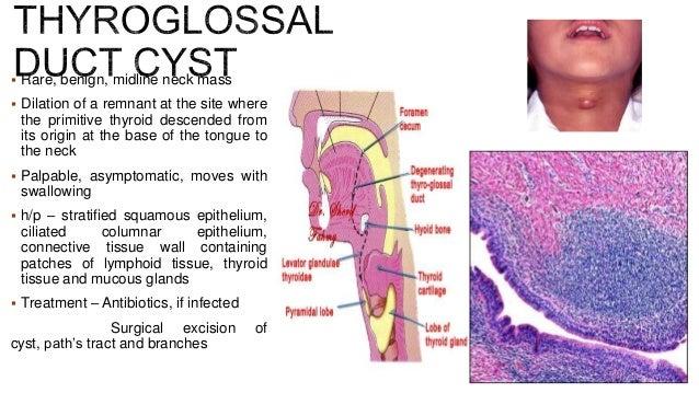  Hamartomatous tumor, multiple sebaceous glands, skin adnexa (nails, dental, cartilage, bone)  Occurs on skin of face, n...