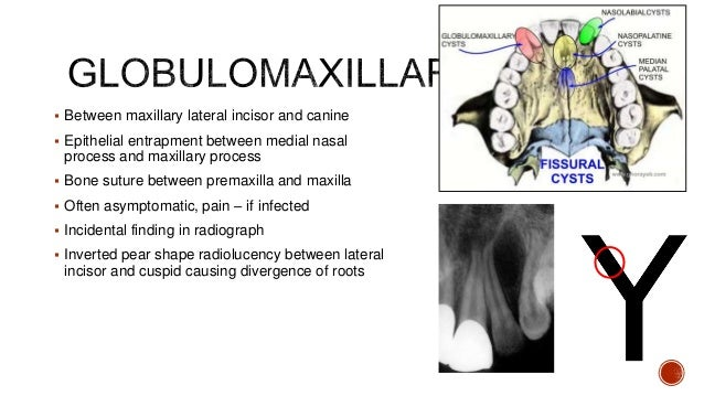  Rare swelling in the mucolabial fold and in the floor of the nose  not visible on radiograph  h/p – pseudostratified c...