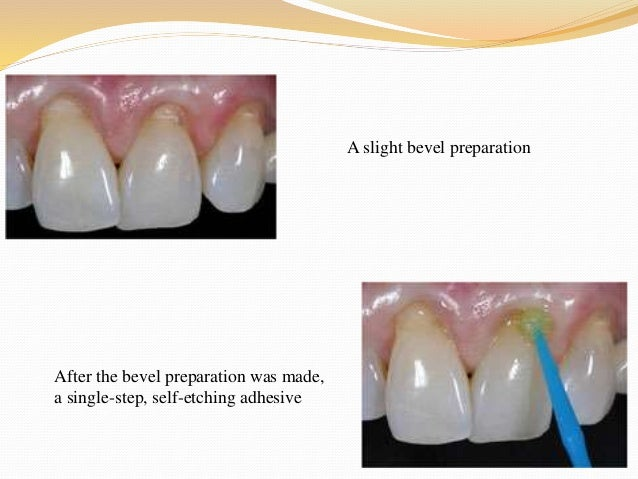 Non surgical management of gingival recession- Dr