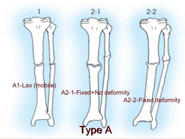 Nonunions Of Long Bones Akbar