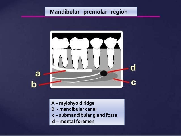 Normal Radiographic Anatomical Landmarks