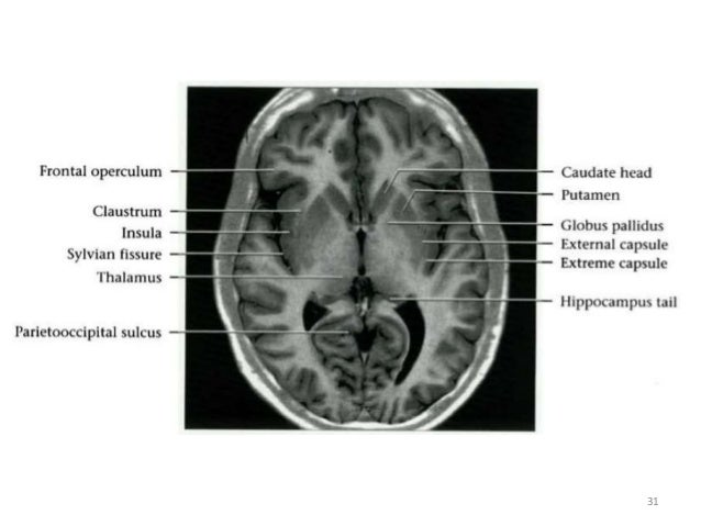 Normal Anatomy Of Brain On Ct And Mri