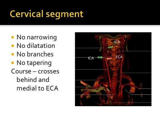 Normal cerebral angiogram final
