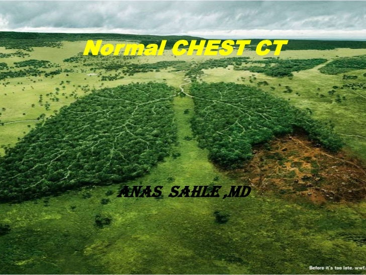 Normal CHEST CT  ANAS SAHLE ,MD
