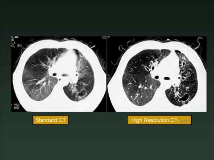 Normal Chest Ct