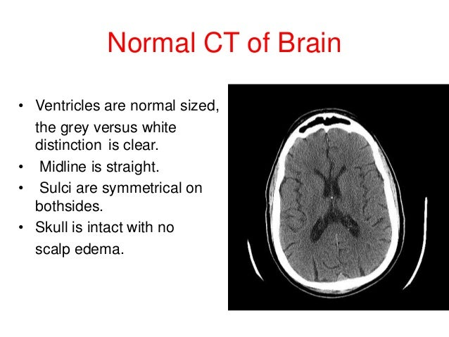 Image result for normal brain ct scan