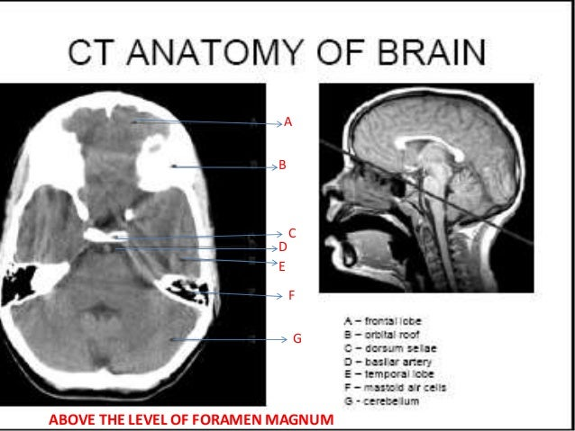 Normal CT BRAIN