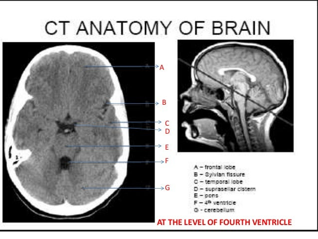 Brain anatomy ct scan
