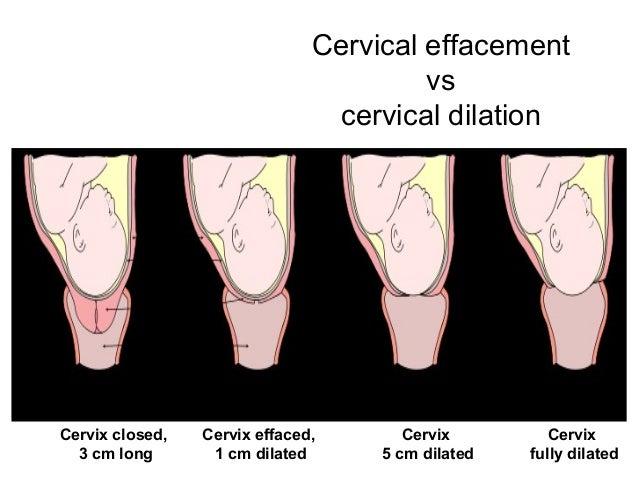 Cervix 2 cm long pregnancy dress