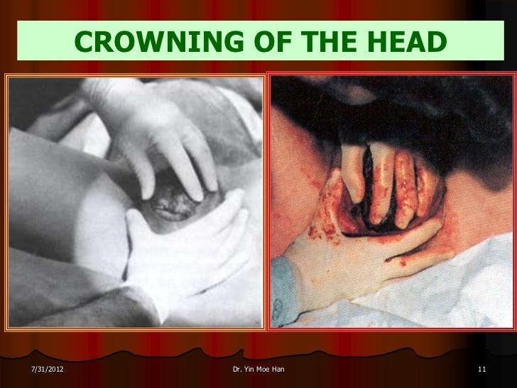 CROWNING OF THE HEAD7/31/2012           Dr. Yin Moe Han   11