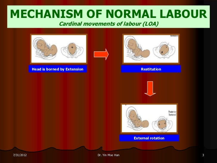 MECHANISM OF NORMAL LABOUR                          Cardinal movements of labour (LOA)            Head is borned by Extens...