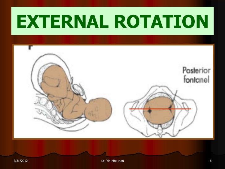 EXTERNAL ROTATION7/31/2012   Dr. Yin Moe Han   6