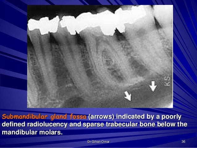 Normal radiographic landmarks