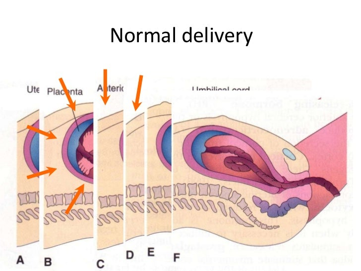 Normal delivery