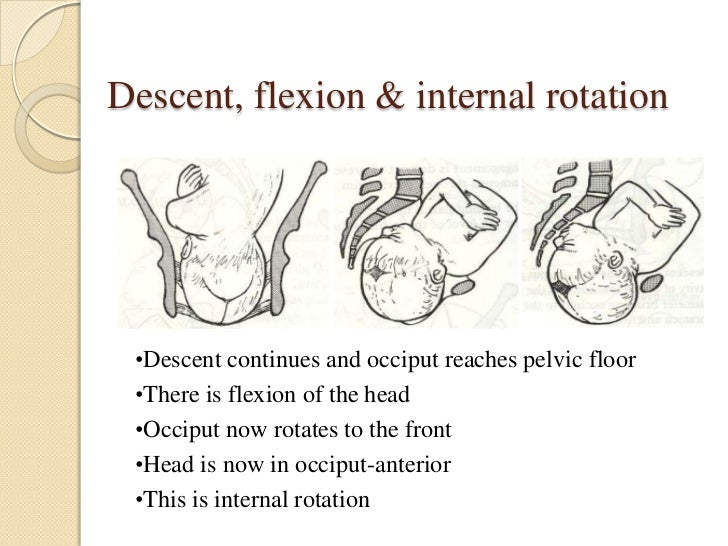 Descent, flexion & internal rotation •Descent continues and occiput reaches pelvic floor •There is flexion of the head •Oc...