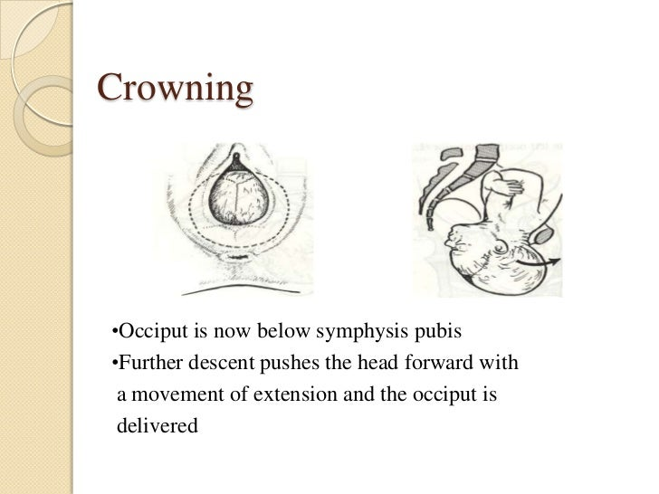 Crowning•Occiput is now below symphysis pubis•Further descent pushes the head forward with a movement of extension and the...