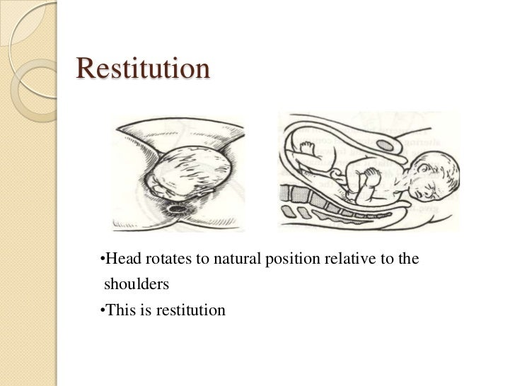 Restitution •Head rotates to natural position relative to the  shoulders •This is restitution