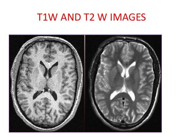 How to read mri brain radiology