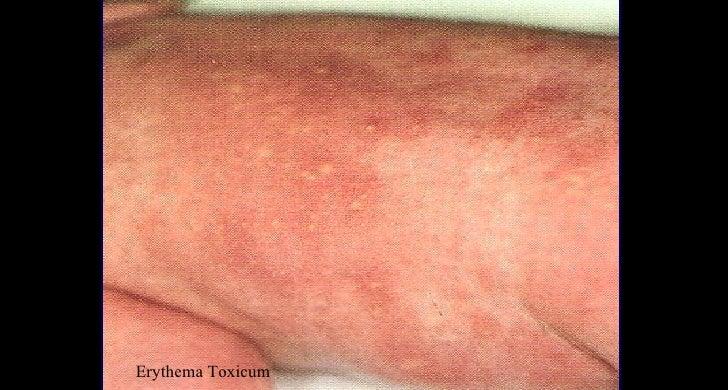 erythema toxicum rash