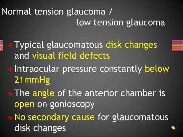Normal tension glaucoma ntg Slide 2