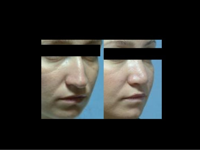 Rinoplasti öncesi ve sonrası 2