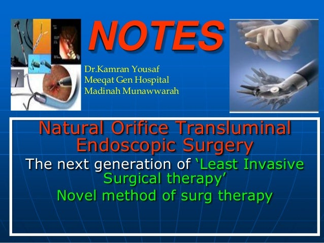 NOTES        Dr.Kamran Yousaf        Meeqat Gen Hospital        Madinah Munawwarah Natural Orifice Transluminal     Endosc...