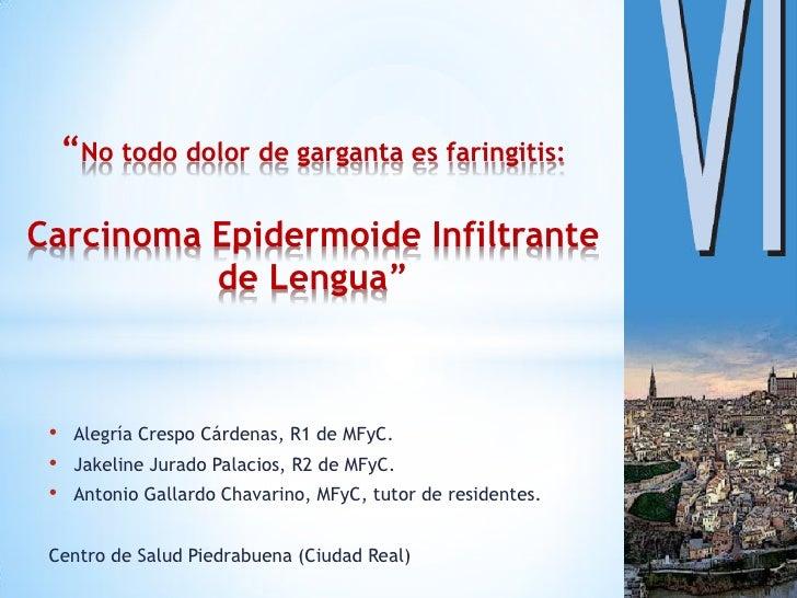 """No todo dolor de garganta es faringitis:Carcinoma Epidermoide Infiltrante          de Lengua"" •    Alegría Crespo Cárdena..."
