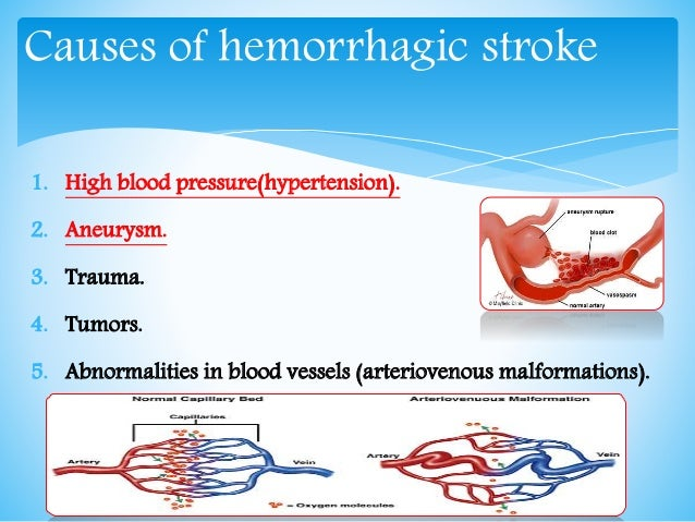 the characteristics and causes of ischemic and hemorrhagic strokes Learn about the similarities and differences between a stroke and a transient ischemic attack (tia) learn about the similarities and differences between a stroke and a transient ischemic attack (tia) menu a bleeding blood vessel can cause a hemorrhagic stroke.