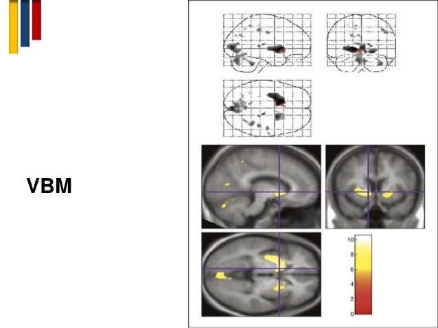 Novel biomarkers in Multiple sclerosis