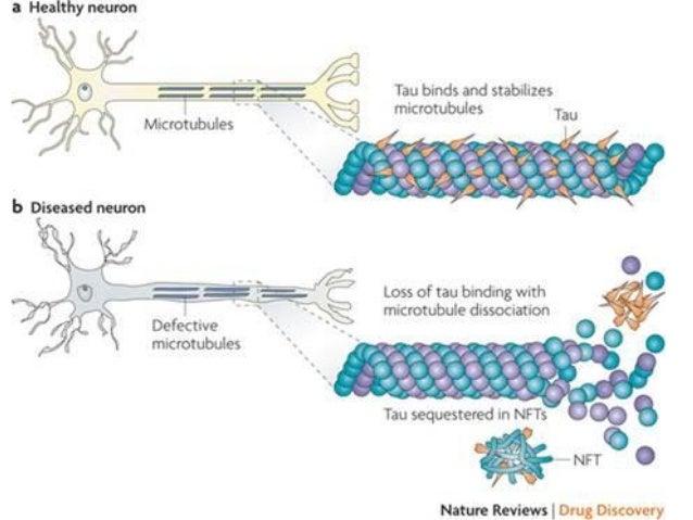 70 VI. Biomarkers of Axonal Damage 5. 14-3-3 Protein Kanter JL, Narayana S, Ho PP, Catz I, Warren KG, Sobel RA, et al. Lip...