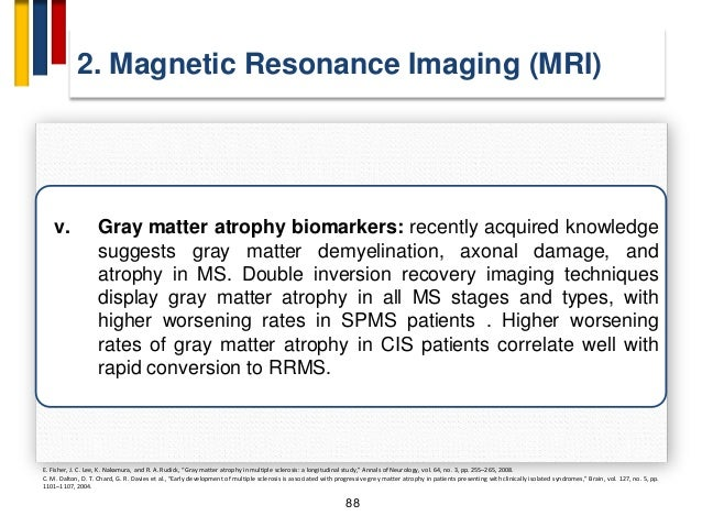 92 4. Diffusion Weighted Imaging (DWI) and Diffusion Tensor Imaging (DTI) • DWI is based on mobility and spatial distribut...