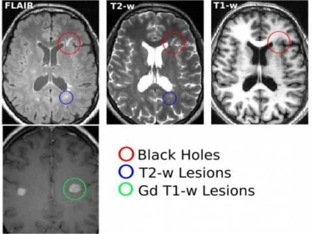 93 4. Diffusion Weighted Imaging (DWI) and Diffusion Tensor Imaging (DTI) • Corpus callosum DTI abnormalities are present ...